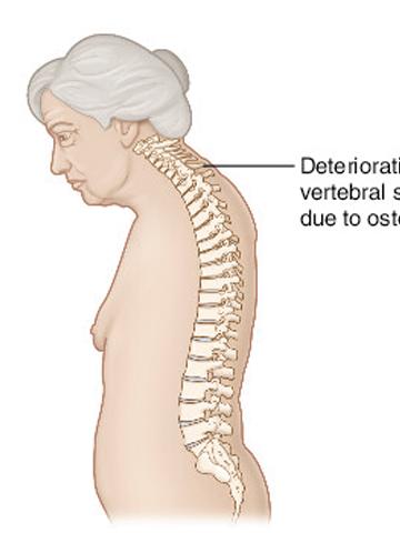 Mediterranean Diet Health Benefits Include Preventing Osteoporosis